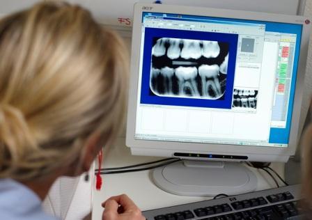 Можно ли делать рентген зуба при беременности