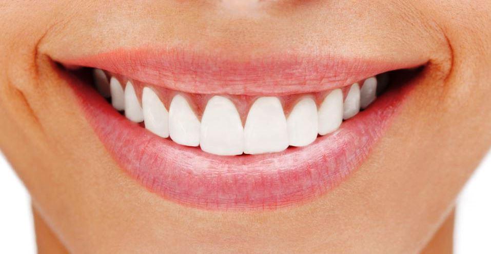 Набор HiSmile для отбеливания зубов