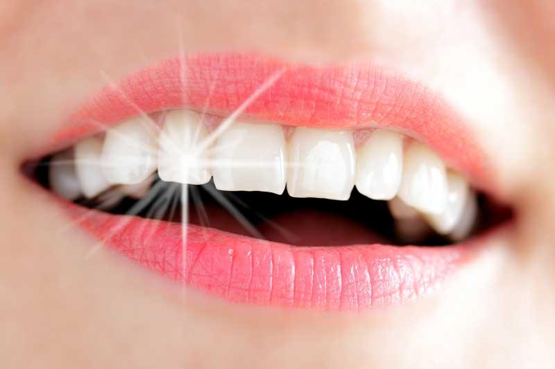 Как отбелить зубы в домашних условиях без вреда для эмали